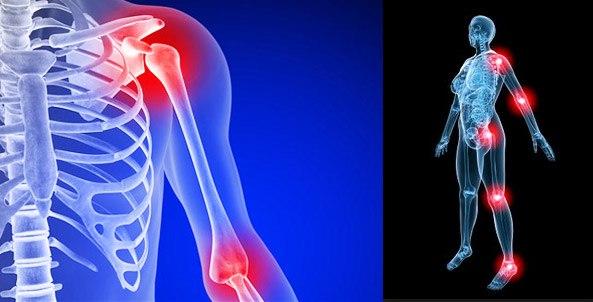 Подтверждена эффективность применения глюкозамина и хондроитина при тяжелых формах остеоартрита
