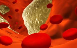 Ученые рассказали, что влияет на уровень холестерина в организме