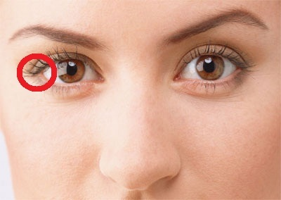 Почему болеют глаза?