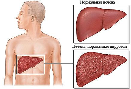 Гепатит печени