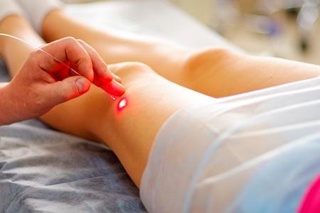 Расширение подкожных капилляров. Как лечить?