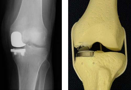Протезирование коленного сустава: к чему готовиться?