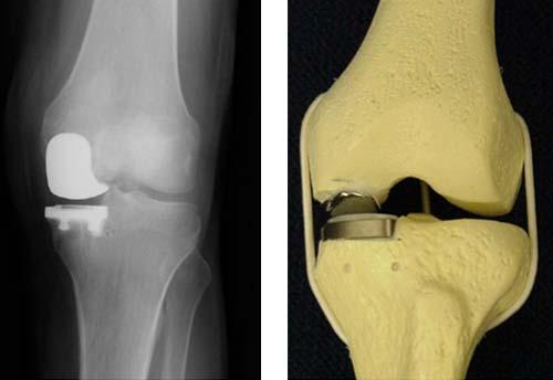 операция по имплантации коленного сустава