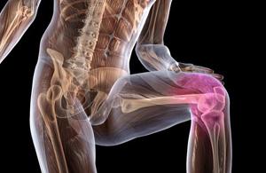 Длительный прием НПВП может немного замедлить развитие остеоартрита коленного сустава