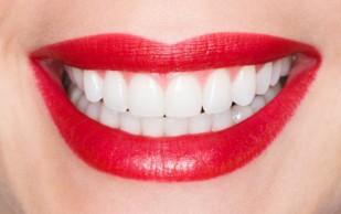 Люминиры и виниры для создания голливудской улыбки
