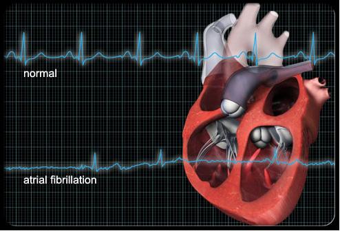 Мерцательная аритмия сердца причины и симптомы прогноз