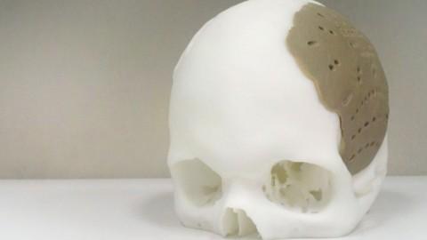 Создана искусственная костная ткань человека