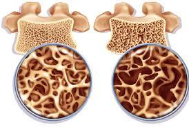 Остеопороз повышает риск внезапной потери слуха