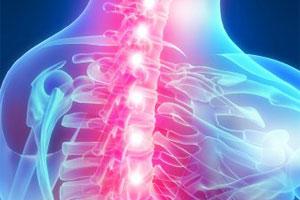 Как лечить остеохондроз грудной клетки