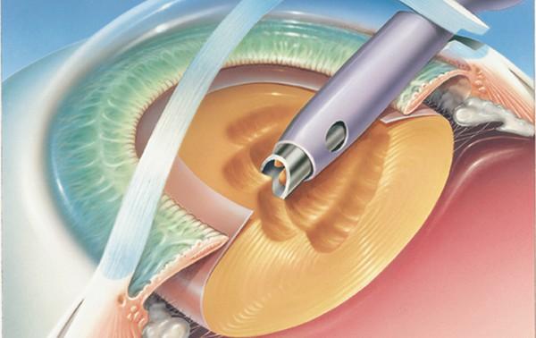 Эффективное и безопасное удаление катаракты
