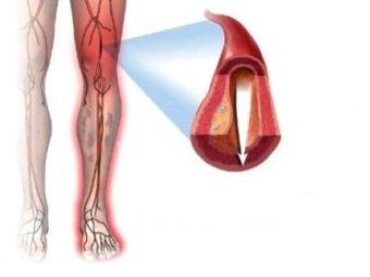 Лечение атеросклероза сосудов конечностей
