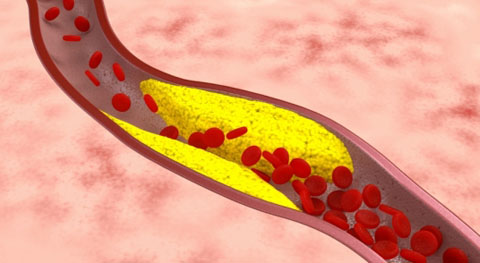 Понятие и признаки ишемической болезни сердца