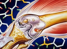 Ревматоидный артрит повышает риск сердечного приступа