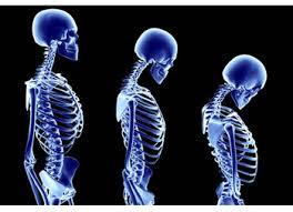 Часто остеопороз — результат неправильного поведения и нездорового образа жизни