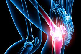 Артрит: симптомы, лечение и диета