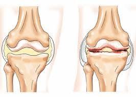 Если болят колени: есть выход