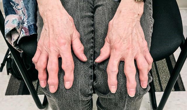 Внезапная потеря веса смертельно опасна при ревматическом артрите