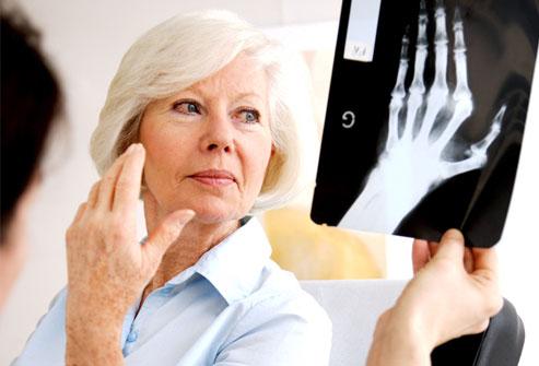 Новый анализ поможет в диагностике артрита