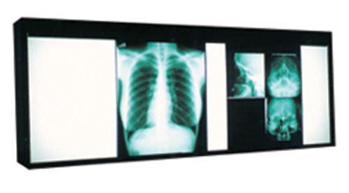 Негатоскоп – помощь при просмотре рентгеновских снимков