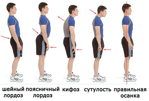 Как определить правильную осанку: упражнения