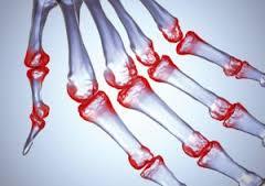 Ревматоидный артрит… рекомендации по лечению