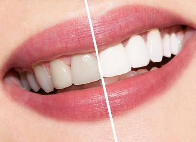 Отбеливание зубов и его особенности