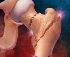 Ученые разработали новый метод лечения остеопороза