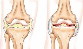 подвывих сустав крювелье лечение