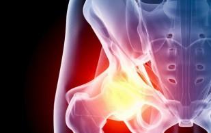 Остеоартроз: как устроены синовиальные суставы?
