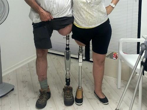 FDA одобрило к применению протез ноги, который вживляется в кость