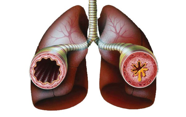 Бронхиальная астма и ее лечение