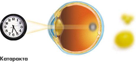 Распространенные офтальмологические заболевания ХХІ века