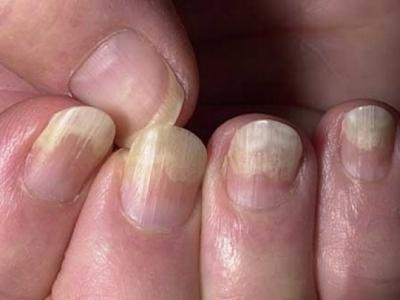 Проблемы со здоровьем и состояние ногтей: какова взаимосвязь?