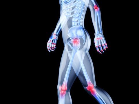 Ревматические заболевания: профилактика и лечение