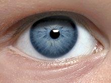 Миоз глаза