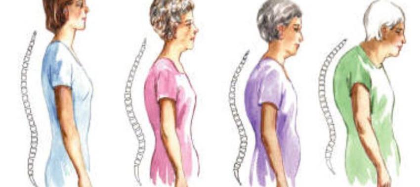 Лечение остеопороза у женщин в посменопаузе