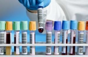 Ученые по одному анализу крови могут диагностировать остеоартрит и ревматоидный артрит
