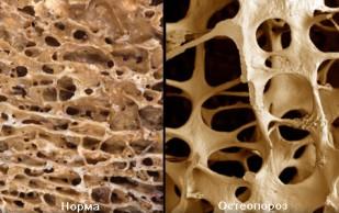 Кости современного человека стали хрупкими, легкими и ломкими
