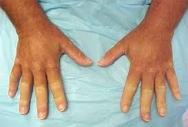 Склеродермия. Причины, симптомы и лечение.