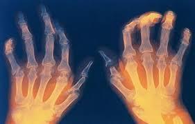 Артрит ревматоидный. Симптомы и лечение артрита ревматоидного.