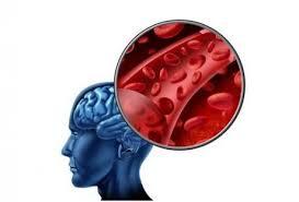 Аэробика восстанавливает белое вещество в мозге