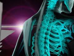 Фтор не вызывает рак костей