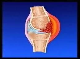 Диагностика ювенильного хронического артрита
