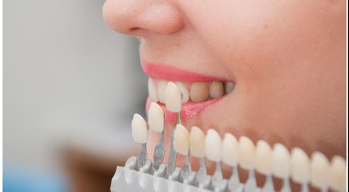 Протезирование зубов: где в Москве лучше сделать