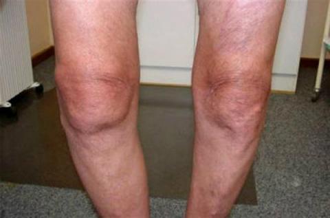 Лечение народными средствами артроза коленного сустава