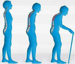 Внешняя среда и постменопаузальный остеопороз
