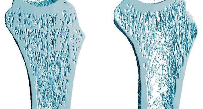 Остеопороз, возможно, станет легко излечимым заболеванием