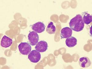 Ученые открыли геном лейкемии