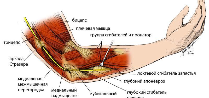 Теннисный локоть — симптомы и лечение