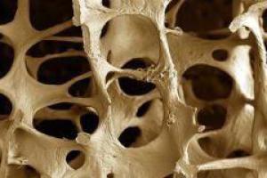 Чай помогает от остеопороза